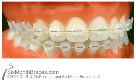 calgary orthodontics